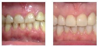 Problemi di salute orale